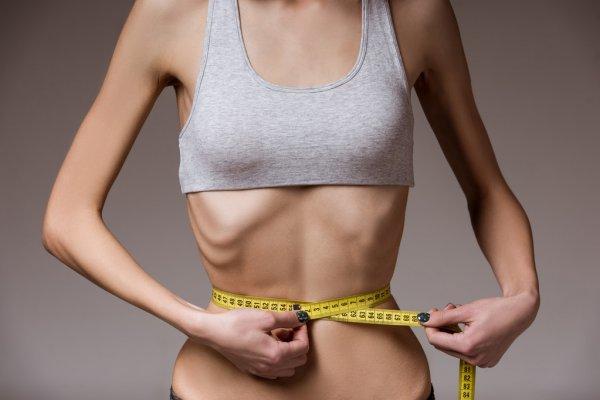 Grave anorexia nerviosa